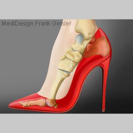 Medical Pictures Fuß Fußgelenk, Medical Art von Frank Geisler