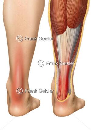 Achillessehne mit schmerzhafter Achillessehnenentzündung (Achillodynie) - Medical Pictures