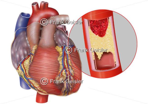 Anatomie Herz, Herzinfarkt durch Arteriosklerose in Koronararterie - Medical Pictures