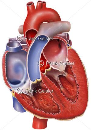 Anatomie Herz, Vorhöfe (Atrien) und Herzkammern (Ventrikel) mit Herzklappen - Medical Pictures