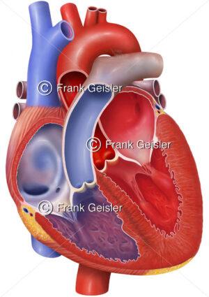 Anatomie Herz  eines jungen Menschen mit Atrium, Herzklappen, Ventrikel, Hohlvene, Aorta, Lungenarterie und Lungenvene - Medical Pictures