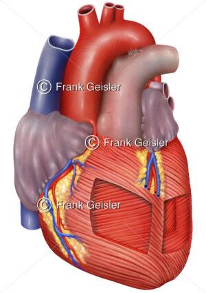 Anatomie Herz mit Herzsmuskulatur, Schichten beim Herzmuskel Myokard - Medical Pictures