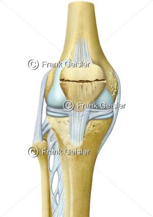 Anatomie Knie mit Patellafraktur der Kniescheibe, Patellabruch, Patellafraktur, Kniescheibenfraktur Querfraktur der Patella - Medical Pictures