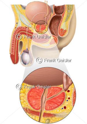 Anatomie Prostata, männliches Becken mit Geschlechtsorgane und Vorsteherdrüse - Medical Pictures