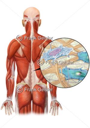 Anatomie Rücken mit Rückenfaszie, Muskeln der Rückenmuskulatur mit Faszien - Medical Pictures
