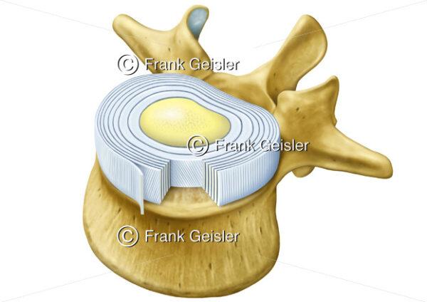Anatomie Wirbelknochen und Bandscheibe mit Faserring und Gallertkern - Medical Pictures