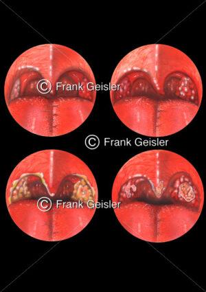 Anginen, Mandelentzündung (Tonsillitis, Angina tonsillaris) der Rachenmandel (Tonsilla pharyngealis) - Medical Pictures