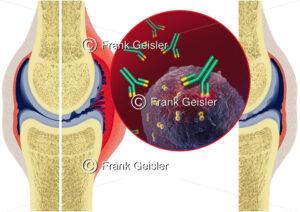 Anwendung Rituximab bei Gelenkentzündung (rheumatoide Arthritis) - Medical Pictures