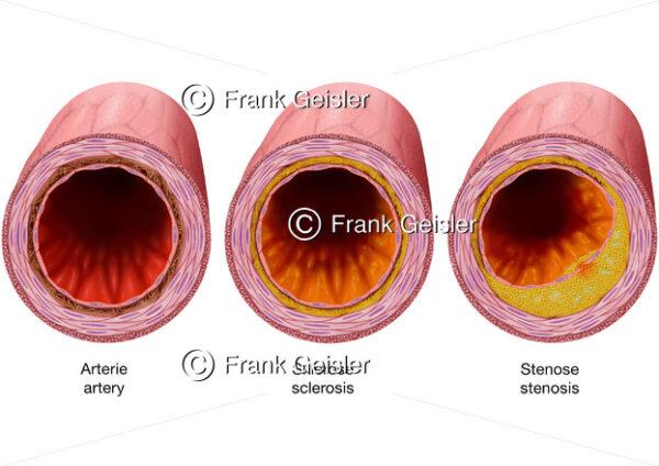 Arterie mit Sklerose und Stenose durch Arteriosklerose Ablagerungen - Medical Pictures