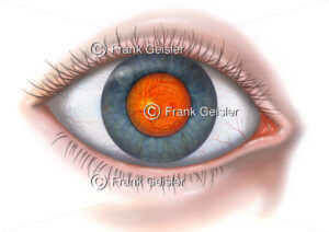 Auge mit Augenhintergrund in Pupille (Sehloch) sichtbar - Medical Pictures