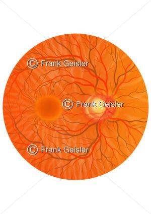 Augenhintergrund (Fundus oculi) mit Glaukom (Grüner Star) - Medical Pictures