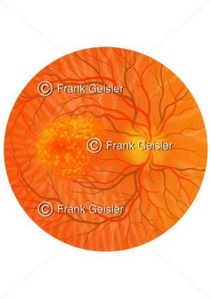 Augenhintergrund (Fundus oculi) mit trockene Makuladegeneration - Medical Pictures