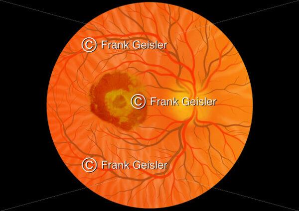 Augenhintergrund mit feuchte Makuladegeneration der Macula lutea (Gelber Fleck) - Medical Pictures