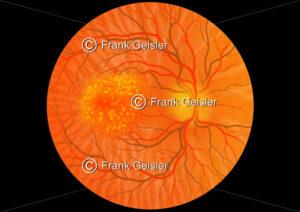 Augenhintergrund mit trockene Makuladegeneration der Macula lutea (Gelber Fleck) - Medical Pictures