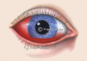 Blutung im Auge, Blutaustritt in die vordere Augenkammer - Medical Pictures