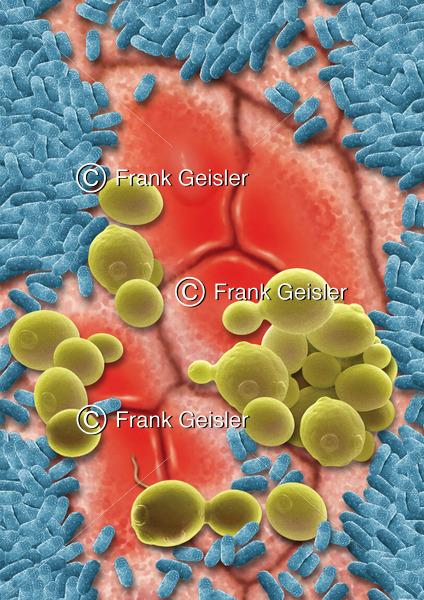 Darmflora auf Schleimhaut im Darm, Mukosa mit pathogene Mykoflora der Intestinalflora - Medical Pictures
