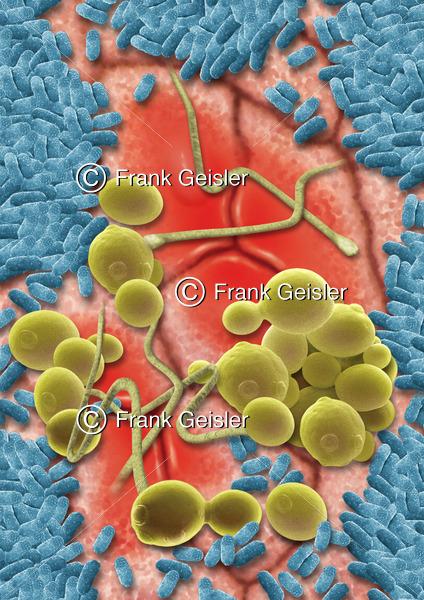 Darmflora auf der Darmschleimhaut, Mukosa mit pathogene Mykoflora der Intestinalflora - Medical Pictures