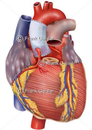 David-Operation der Aorta, Tirone-David-Technik bei Herz OP - Medical Pictures