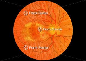 Diabetes mellitus, Augenhintergrund mit Makuladegeneration - Medical Pictures
