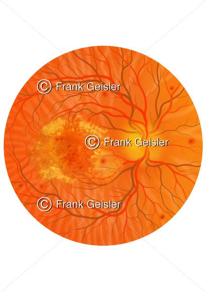 Diabetische Retinopathie, Augenhintergrund mit Makuladegeneration bei Diabetes mellitus - Medical Pictures