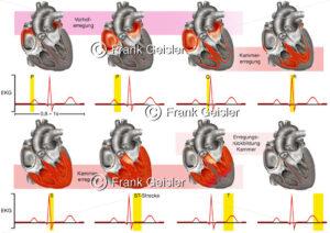 EKG Herz, Herzerregung über Erregungsleitungssystem - Medical Pictures