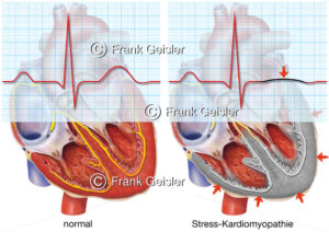 EKG bei Stress-Kardiomyopathie (Broken-Heart-Syndrom) - Medical Pictures