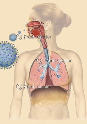Echte Grippe durch Influenza-Infektion - Medical Pictures