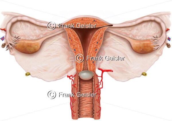 Empfängnisverhütung (Kontrazeption) mit Diaphragma (Scheidenpessar) - Medical Pictures