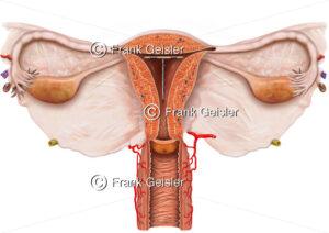 Empfängnisverhütung (Kontrazeption) mit Intrauterinpessar (IUP) - Medical Pictures