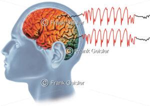 Epilepsie, generalisierter epileptischer Anfall - Medical Pictures