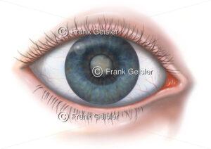 Erkrankung Auge, die Katarakt (Grauer Star) der Augenlinse - Medical Pictures