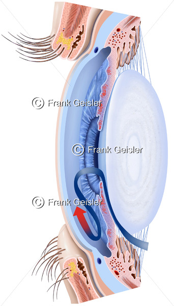 Erkrankung Auge, erhöhter Augeninnendruck in Augenkammer bei Glaukom, grüner Star - Medical Pictures