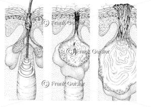 Erkrankung der Haut , Veränderung der Talgdrüse bei Akne - Medical Pictures