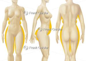 Frau, athletischer Körperbau und pyknische Silhouette - Medical Pictures