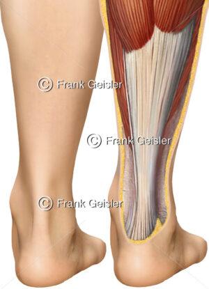 Fuß von hinten mit Achillessehne Tendo calcaneus und Wadenmuskeln - Medical Pictures