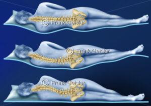 Gerade Lage der Wirbelsäule Columna vertebralis beim gesunden Schlaf - Medical Pictures