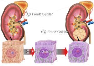 Gesunde Niere mit Nierenzelle und Mutation einer Krebszelle zum Nierenzellkarzinom NCC - Medical Pictures