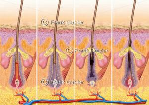 Haarzyklus, Histologie Haut (Derma, Cutis) mit Haar (Pili) - Medical Pictures