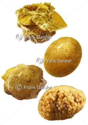 Harnsteine (Urolithe) in Nieren, Harnleiter, Harnblase oder Harnröhre - Medical Pictures