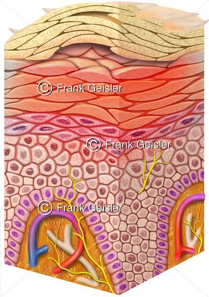 Hautkrankheit Neurodermitis der Haut, atopisches Ekzem der Oberhaut, atopische Dermatitis der Epidermis mit Dermatitis - Medical Pictures
