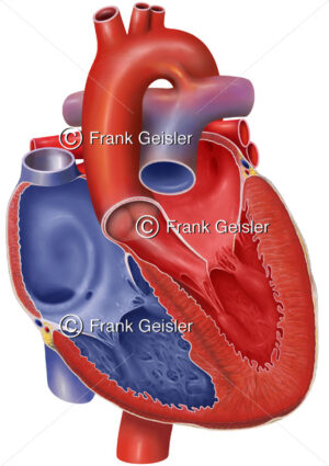 Herz mit Ductus arteriosus (Ductus arteriosus Botalli, Ductus Botalli) - Medical Pictures