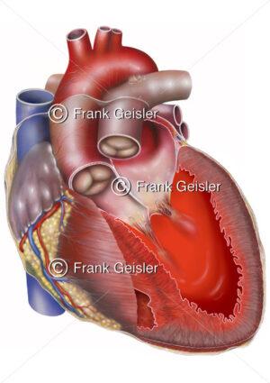 Herz mit Herzinsuffizienz (Herzschwäche, Herzmuskelschwäche) - Medical Pictures