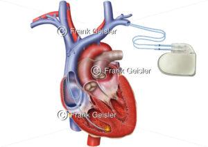 Herz mit Herzschrittmacher bei Bradykardie - Medical Pictures