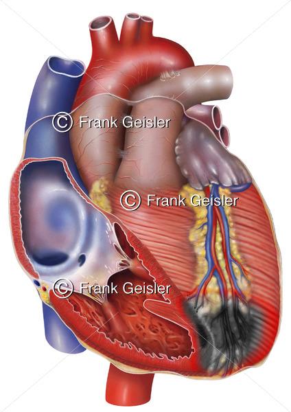 Herz mit Myokardinfarkt (Herzinfarkt, Herzmuskelinfarkt) - Medical Pictures