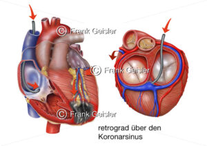 Herzinfarkt, Therapie Myokardinfarkt über Koronarsinus mit Stammzellen - Medical Pictures