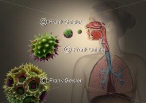 Heuschnupfen durch Pollenallergie, allergische Reaktionen der Atemwege durch Pollen - Medical Pictures