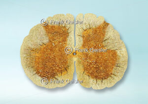 Histologie Rückenmark (Medulla spinalis), Sakralmark (Pars sacralis) in der Wirbelsäule - Medical Pictures