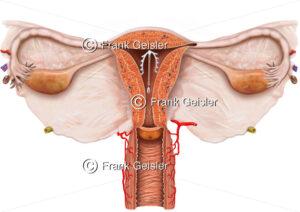 Intrauterinpessar (IUP) zur Empfängnisverhütung (Kontrazeption) der Frau - Medical Pictures