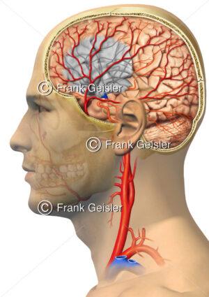 Ischämischer Schlaganfall (Hirninfarkt, Apoplex) durch eine Embolie - Medical Pictures