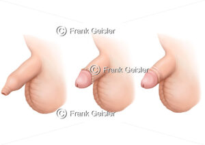 Kinderchirurgie, Phimose  (Vorhautverengung) und Zirkumzision (Beschneidung) - Medical Pictures